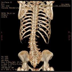 X線で全身の任意立体写真を撮影